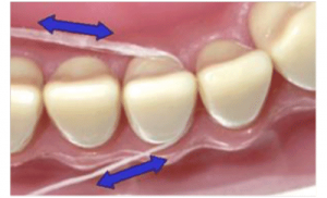 Step 5 in successfully flossing your teeth, Worceter Dental Care