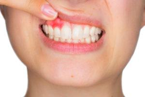 5 Ways to Avoid Gum Disease