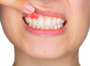 5 Ways to Avoid Gum Disease