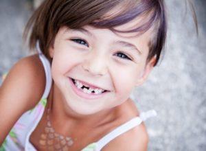 cavities | preventing cavities